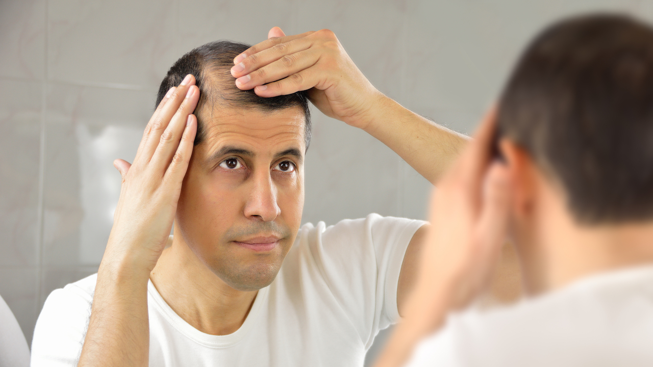 Do Away with Your Bald Scalp through a hair transplant!