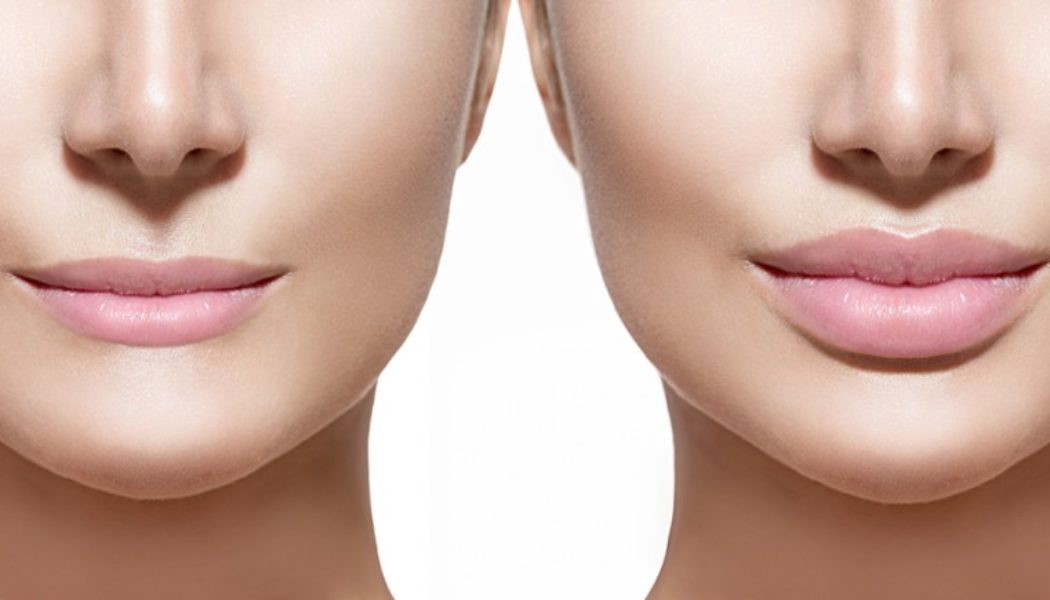 Get Your Lips Done through Lip Augmentation