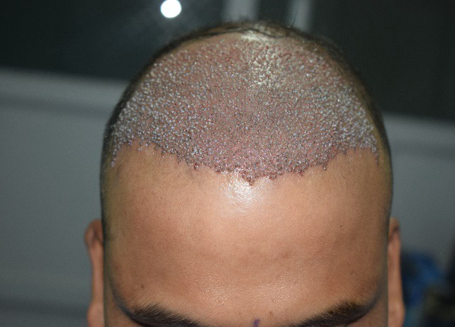 Grow After Hair Transplant