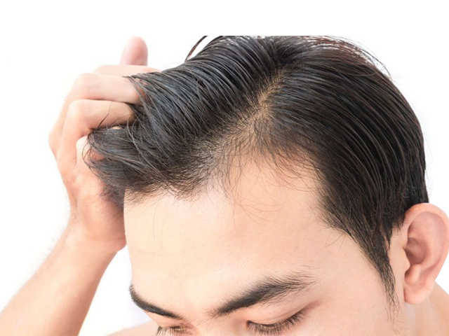 What is FUE hair transplant