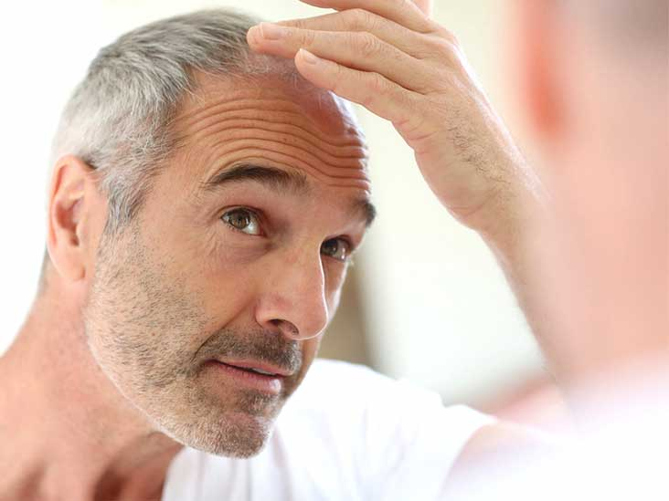Hair Transplant Keyword: baldness hair transplant