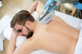 How to avoid side effects of laser hair removal?